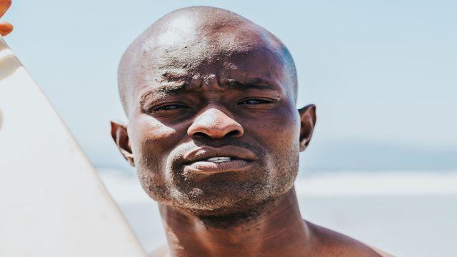 Black people need sunscreen
